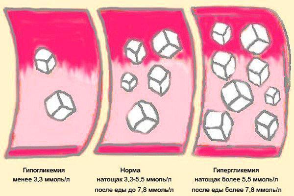 Норматив содержания сахара в крови