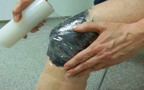Применение мази из алоказии крупнокорневой