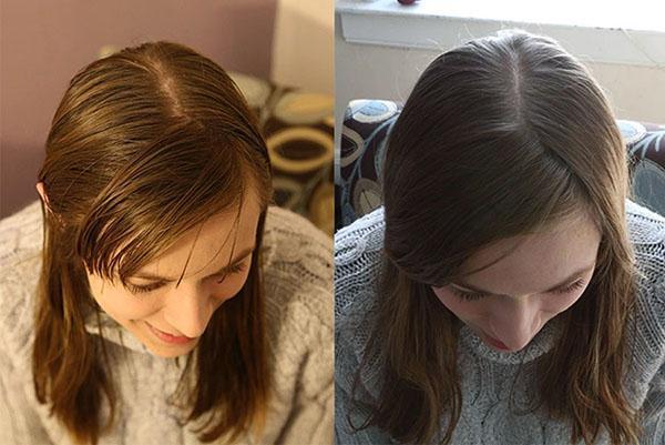 Vichy для роста волос: капсулы, шампунь, отзывы