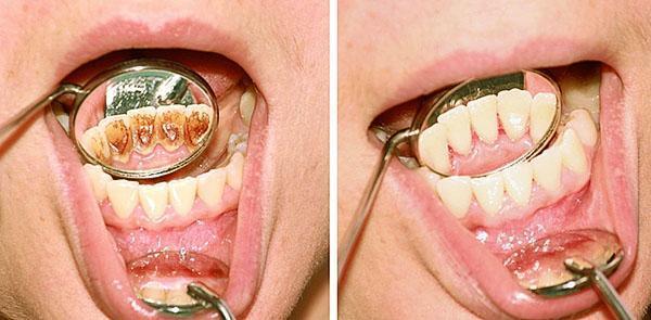 удаляем зубной камень отваром скорлупы орехов