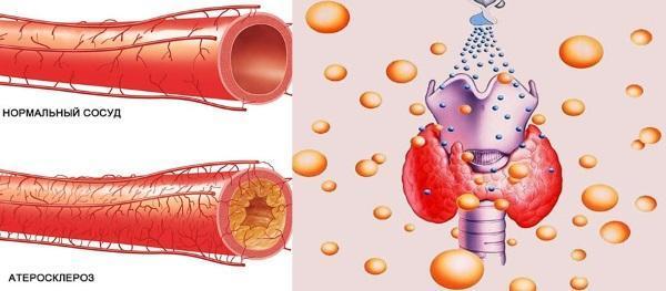 Артроз и гормональный сбой щитовидной железы