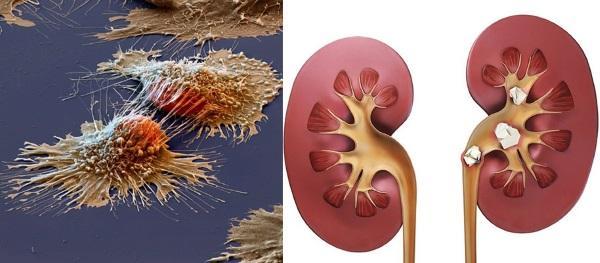 облепиха с медом победит раковые клетки и мочекаменную болезнь