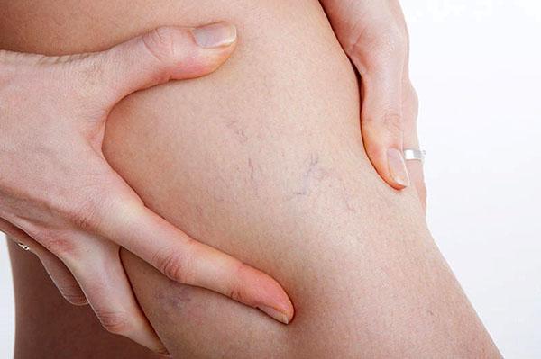 для лечения венозной недостаточности