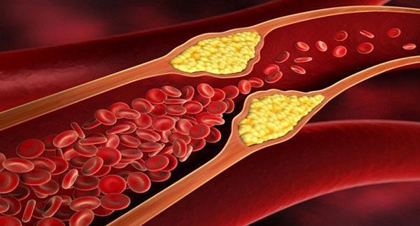 снижает уровень холестерина в крови