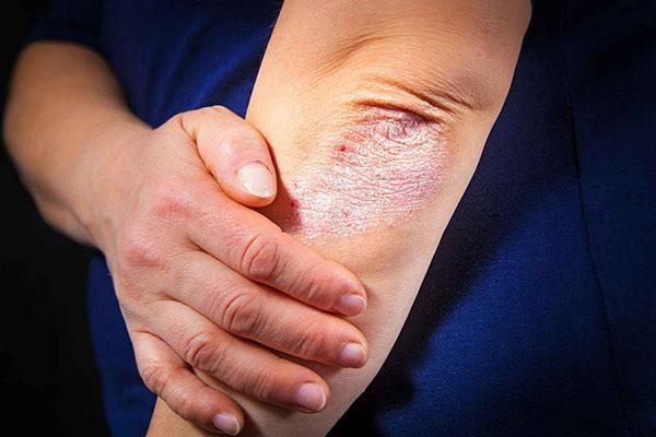 лечение псориаза магонией